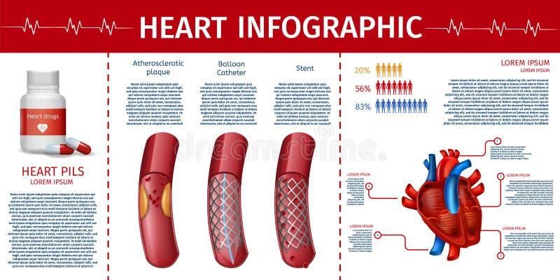 Corazón y página cardiovascular de Infographic de la terapia ilustración del vector