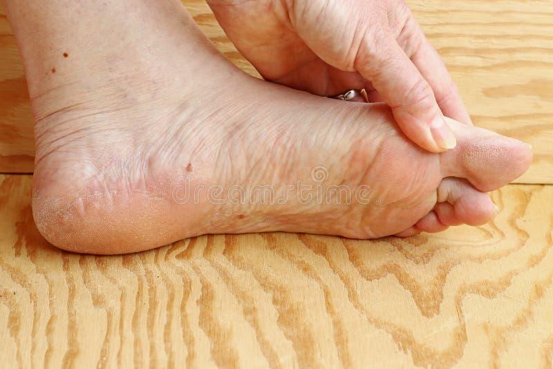 Cornée et peau sèche sur le pied d'une femme plus âgée photographie stock libre de droits