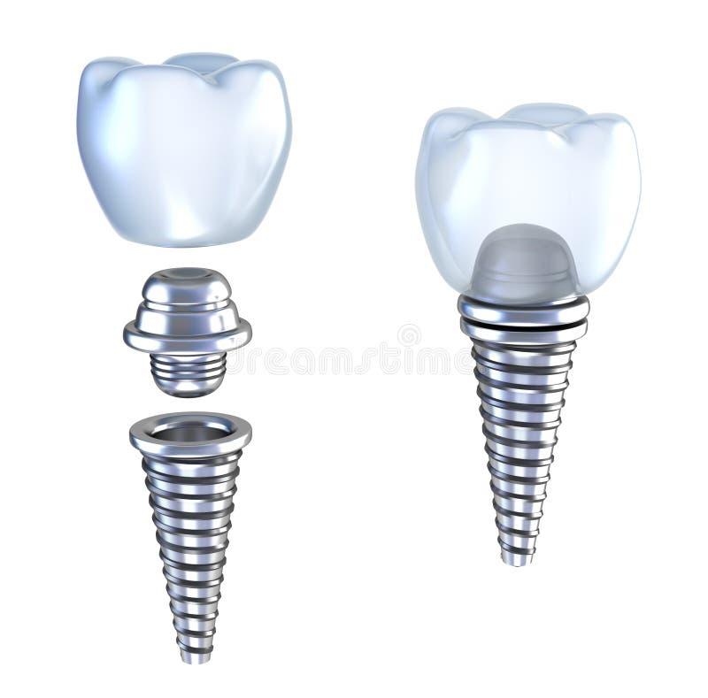 Coroa do implante dental 3d com pino ilustração royalty free