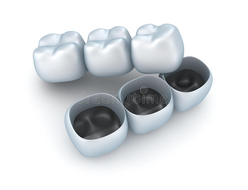 Coroas do dente artificial. ilustração do vetor