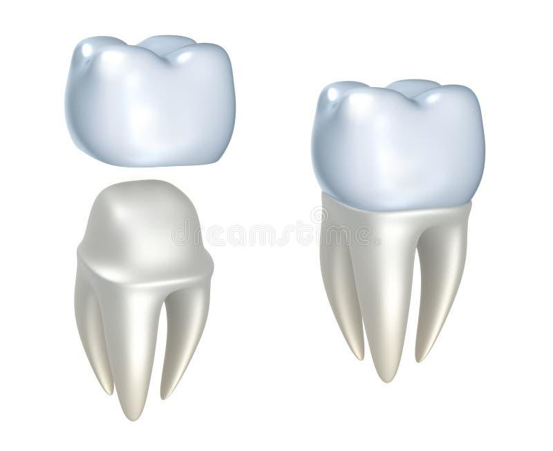 Coroas e dente dentais ilustração royalty free