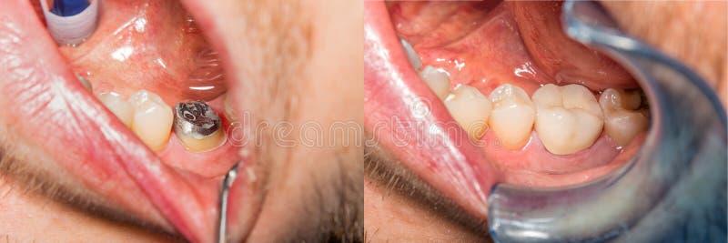 Corona del dente sul modello del gesso della mandibola umana Macro primo piano del fotografia stock