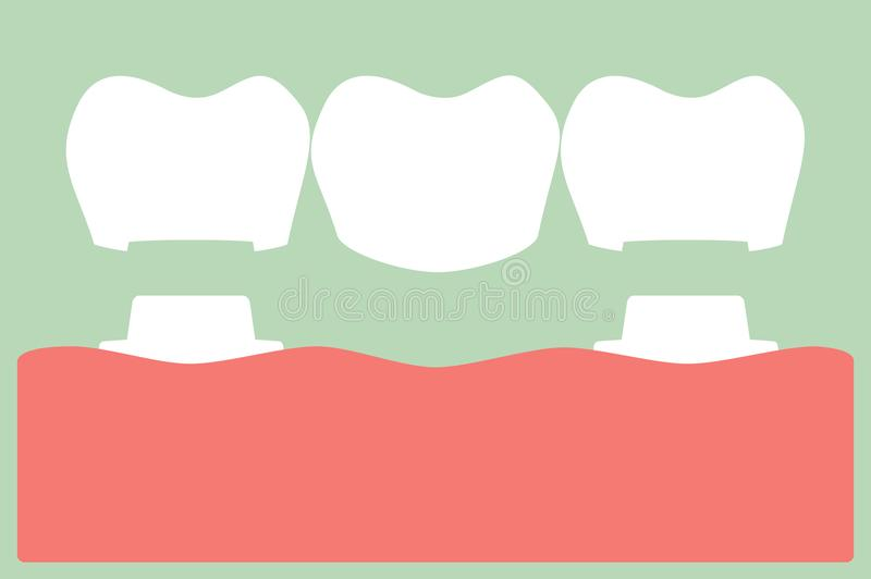 Corona dental con el puente, el proceso de instalación y el cambio de dientes libre illustration