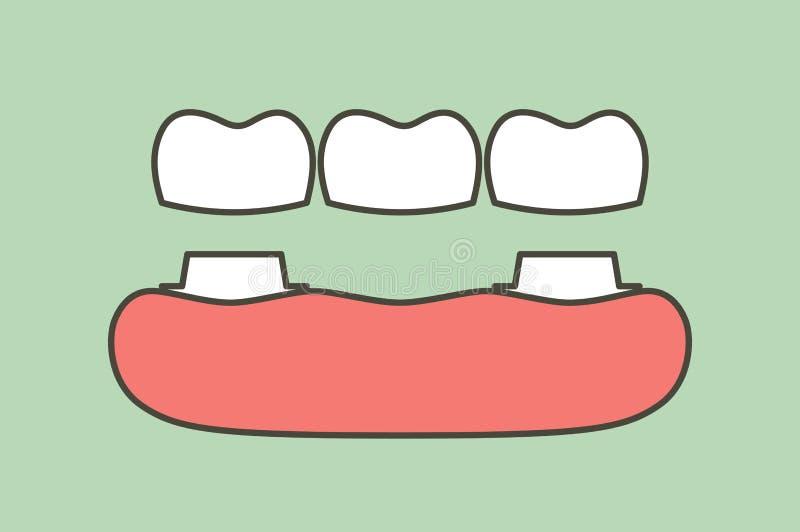 Corona dental con el puente, el proceso de instalación y el cambio de dientes ilustración del vector