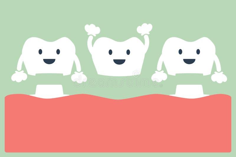 Corona dental feliz con el puente, el proceso de instalación y el cambio de dientes libre illustration