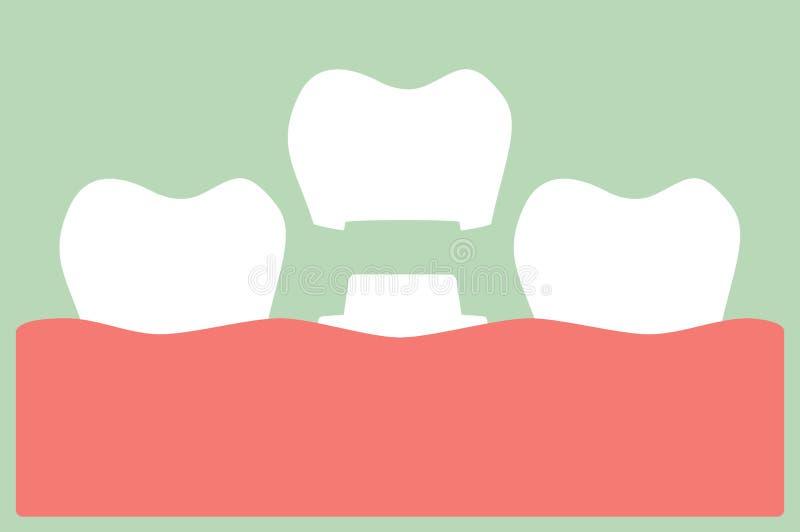 Corona dental, proceso de instalación y cambio de dientes stock de ilustración