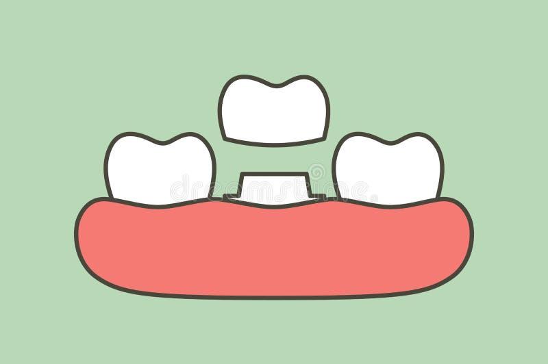 Corona dental, proceso de instalación y cambio de dientes ilustración del vector