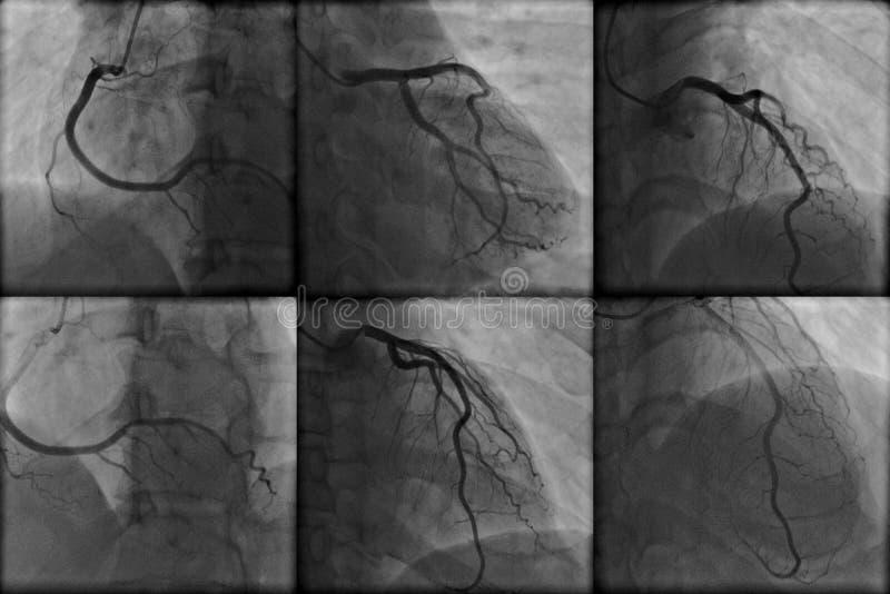 Coronary angiography. Normal right and left coronary arteries on cardiac angiography stock photo