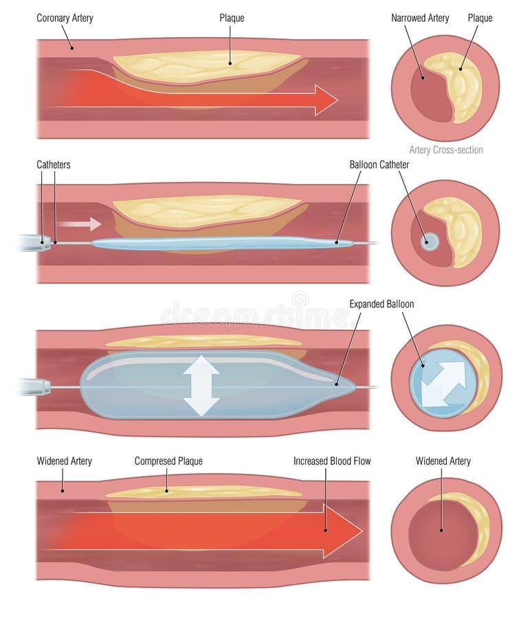Coronary artery. Narrowed coronary artery balloon dilation vector illustration
