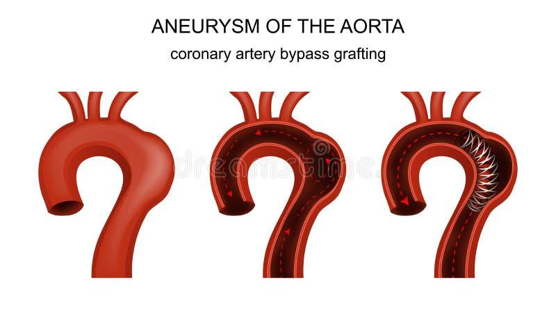 Coronary artery bypass grafting. Vector illustration of coronary artery bypass grafting stock illustration