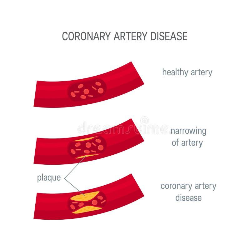 Coronary artery disease concept in flat style vector illustration