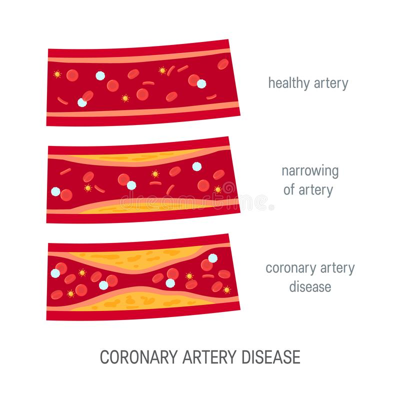 Coronary artery disease concept in flat style royalty free illustration