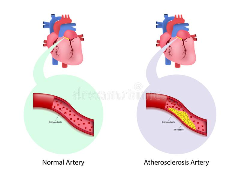 Coronary artery disease in human. Cholesterol in artery royalty free illustration