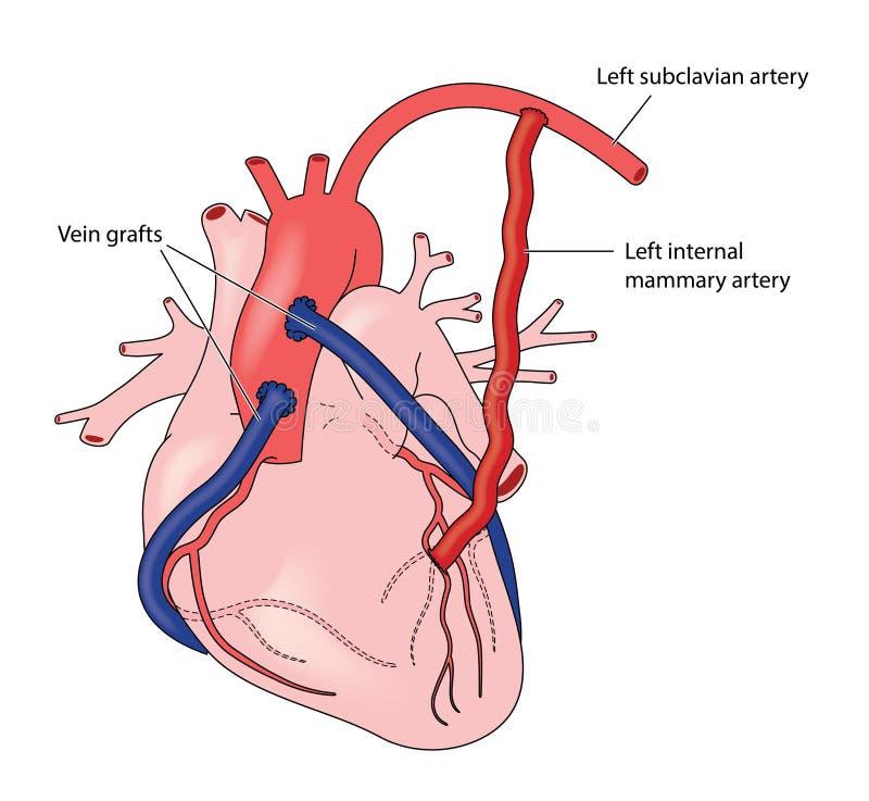 Coronary artery grafts. Using veins and the left internal mammary artery stock illustration