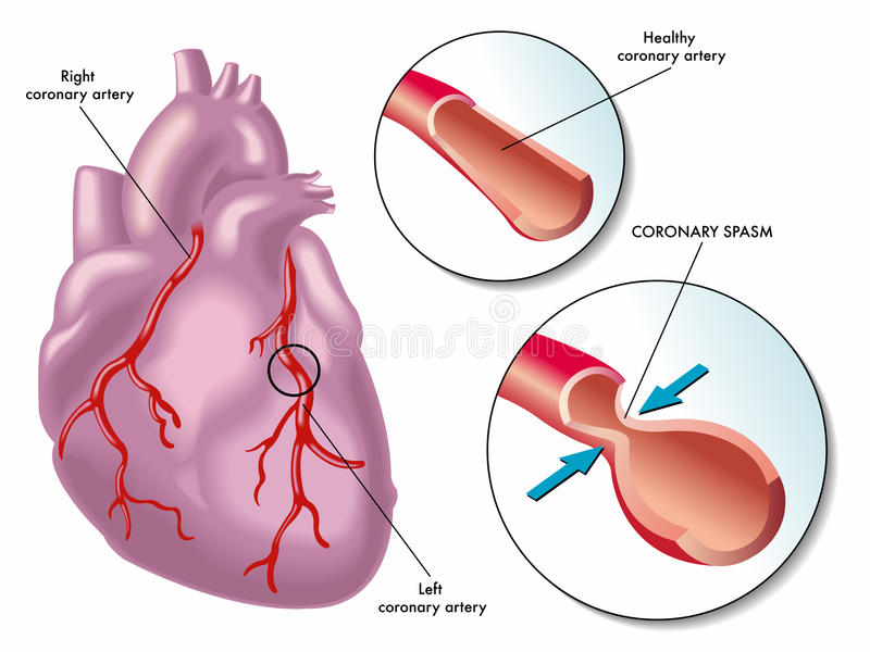 Coronary artery spasm. Medical illustration of the consequences of coronary artery spasm royalty free illustration