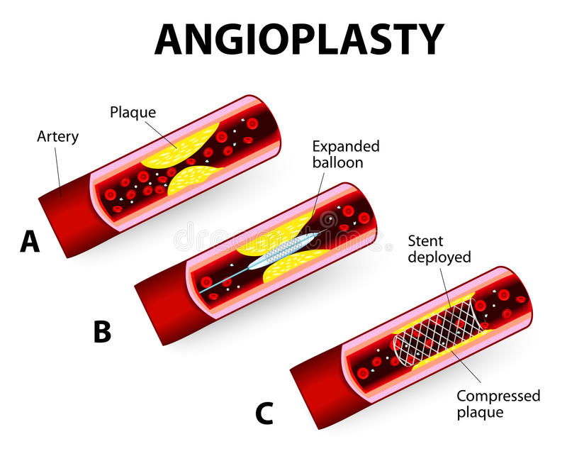 Coronary Balloon Angioplasty. Vector diagram. Angioplasty and Stent Implantation. Deflated balloon catheter inserted into a coronary artery narrowed by plaque vector illustration