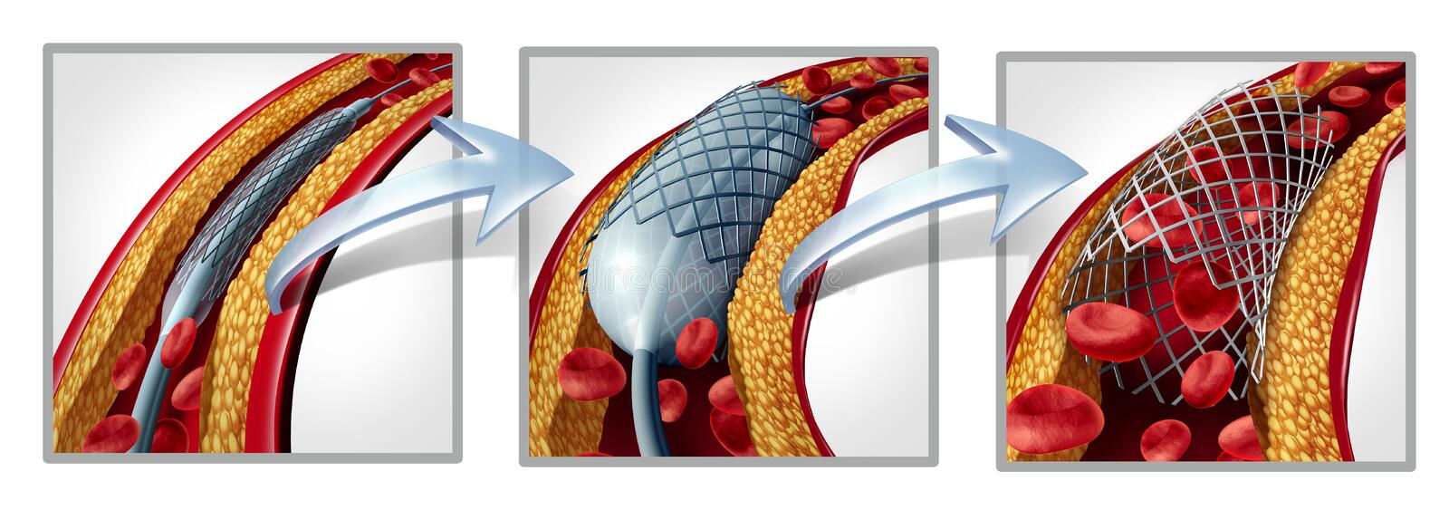 Coronary Stent Diagram. Coronary stent and angioplasty concept as a heart disease treatment symbol diagram with the stages of an implant procedure in an artery vector illustration