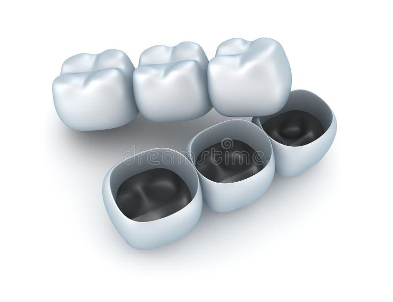 Coronas del diente artificial. ilustración del vector