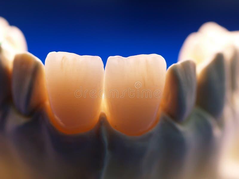 Coronas dentales fotografía de archivo