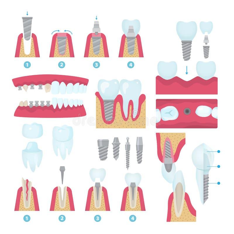 Coronas dentales e implantación stock de ilustración