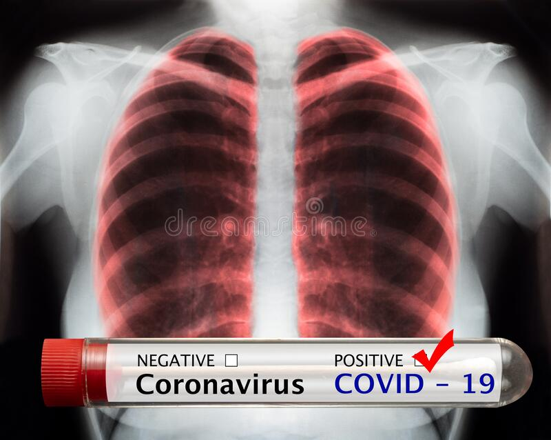 Coronavirus covid19 blood test and X-Ray stock photos