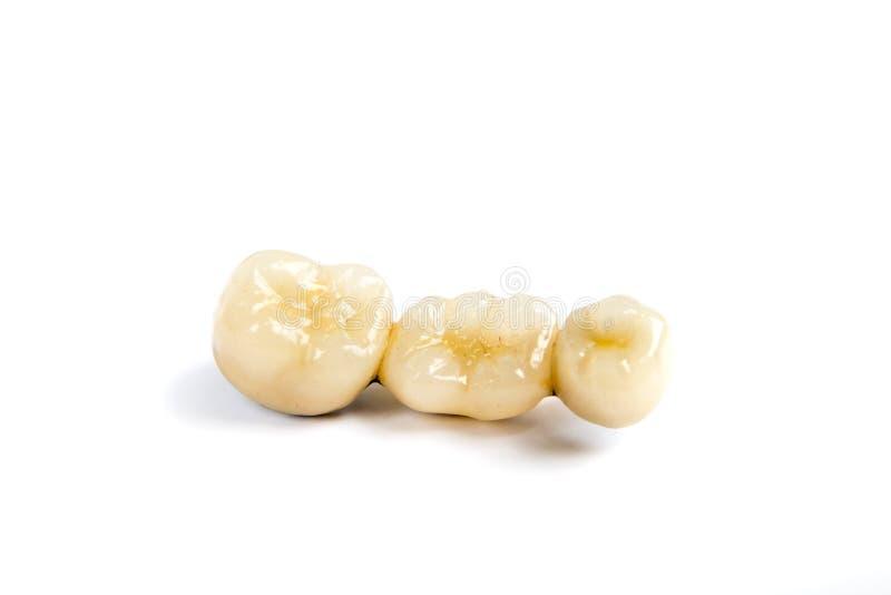 Corone ceramiche dentarie del dente su fondo bianco fotografie stock libere da diritti