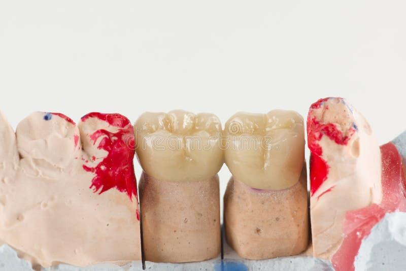 Corone ceramiche per provare sopra un modello del dente fotografia stock libera da diritti