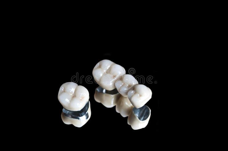 Corone dentarie ceramiche fotografia stock libera da diritti