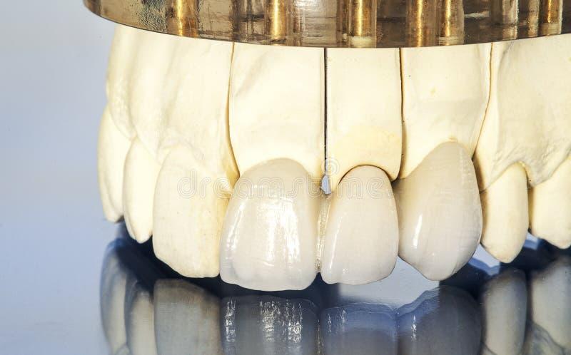 Corone dentarie ceramiche libere del metallo immagine stock