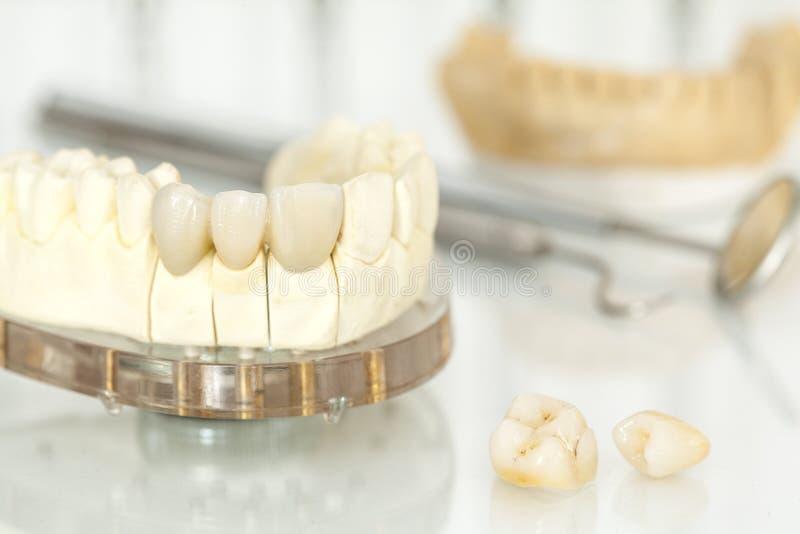 Corone dentarie ceramiche libere del metallo fotografia stock libera da diritti