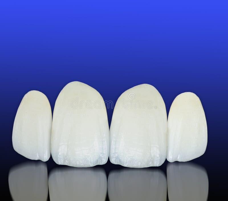 Corone dentarie ceramiche libere del metallo fotografia stock