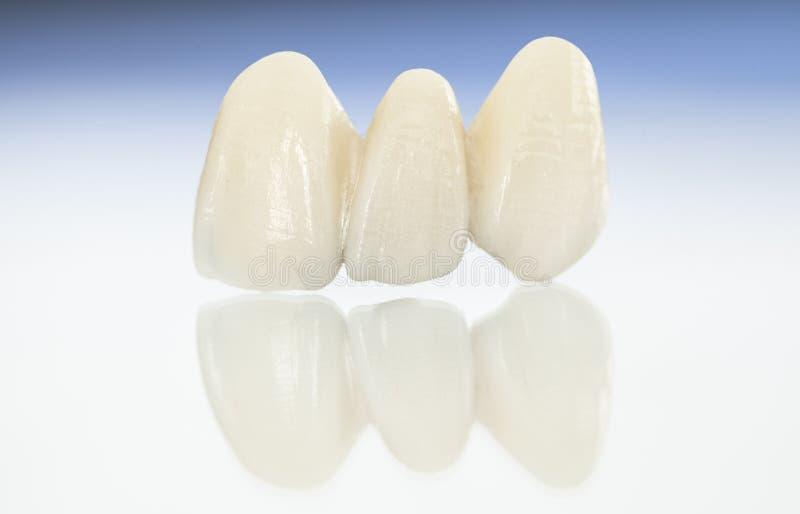 Corone dentarie ceramiche libere del metallo immagini stock