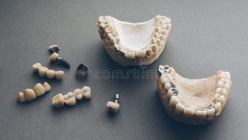 Corone dentarie delle protesi dentarie delle mandibole del gesso della protesi fotografia stock