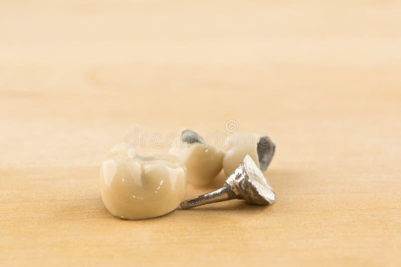 Corone metal-ceramiche dentarie moderne immagini stock