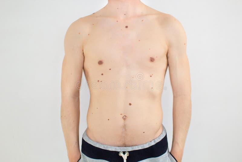 Corpo de um homem com toupeiras fotos de stock royalty free