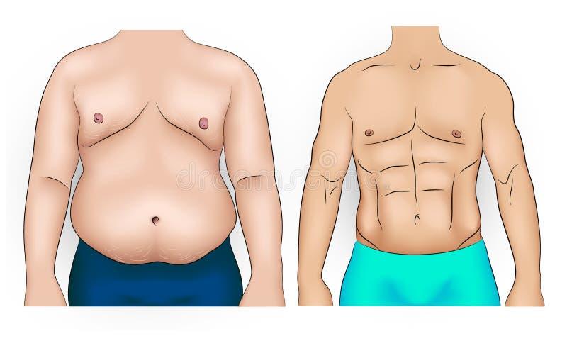 Corpo do homem antes e depois da perda de peso ilustração royalty free