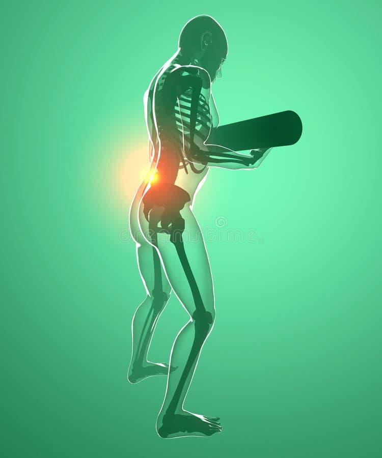 Corpo humano com um peso e uma dor nas costas, raio X ilustração do vetor