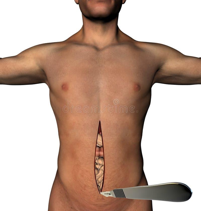 Corpo umano tagliato addome tradizionale del bisturi della chirurgia royalty illustrazione gratis