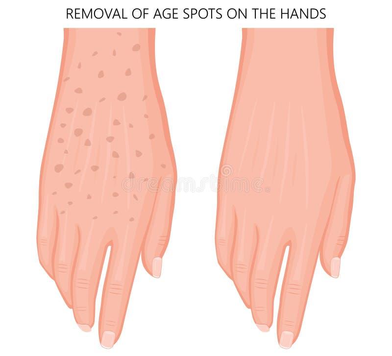 Corps humain problem_Removal des taches d'âge sur les mains 1 illustration de vecteur