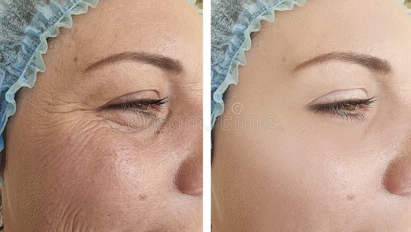Correção dos enrugamentos do elderlyface da mulher antes após o tratamento antienvelhecimento de levantamento da regeneração do b fotografia de stock royalty free