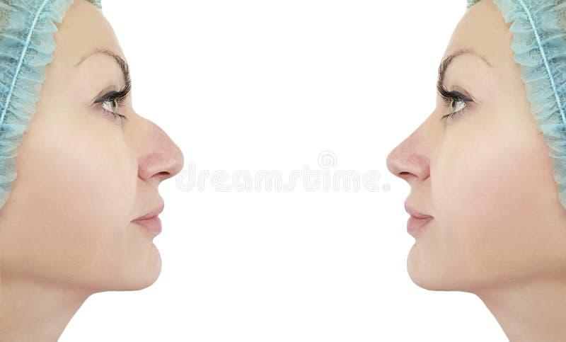 Corrección antes y después de procedimientos, rinoplastia de la nariz de la mujer del perfil de la chepa fotos de archivo