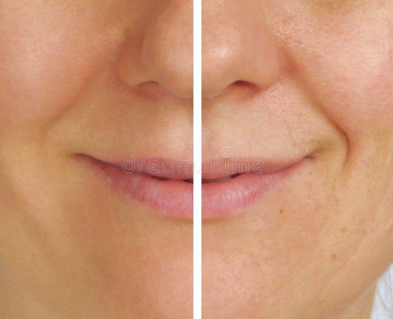 Corrección de arrugas en la mitad de la cara fotos de archivo libres de regalías