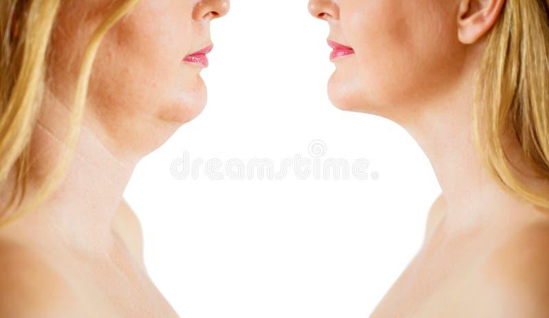 Corrección de la grasa o de la papada de la barbilla doble, antes y después imagenes de archivo