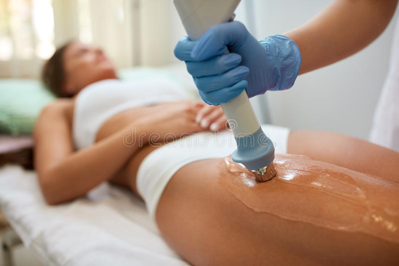 Correction cellulite figures with acoustic wave therapy in the stock images