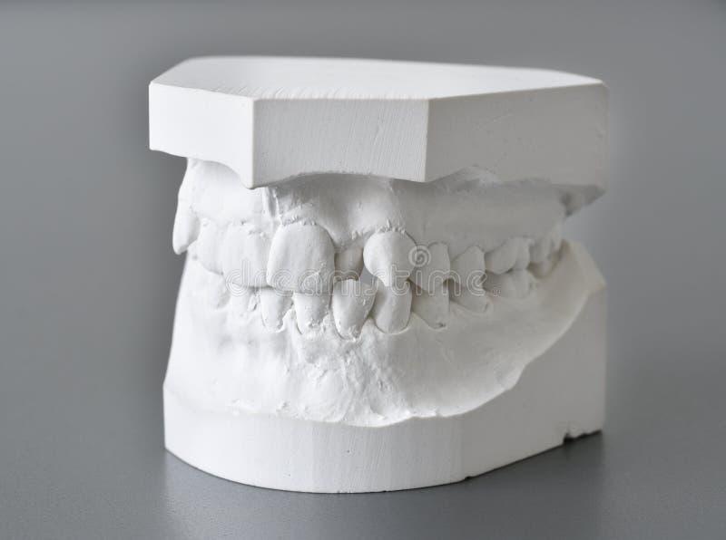 Correction dentaire de moules orthodontiques photo stock