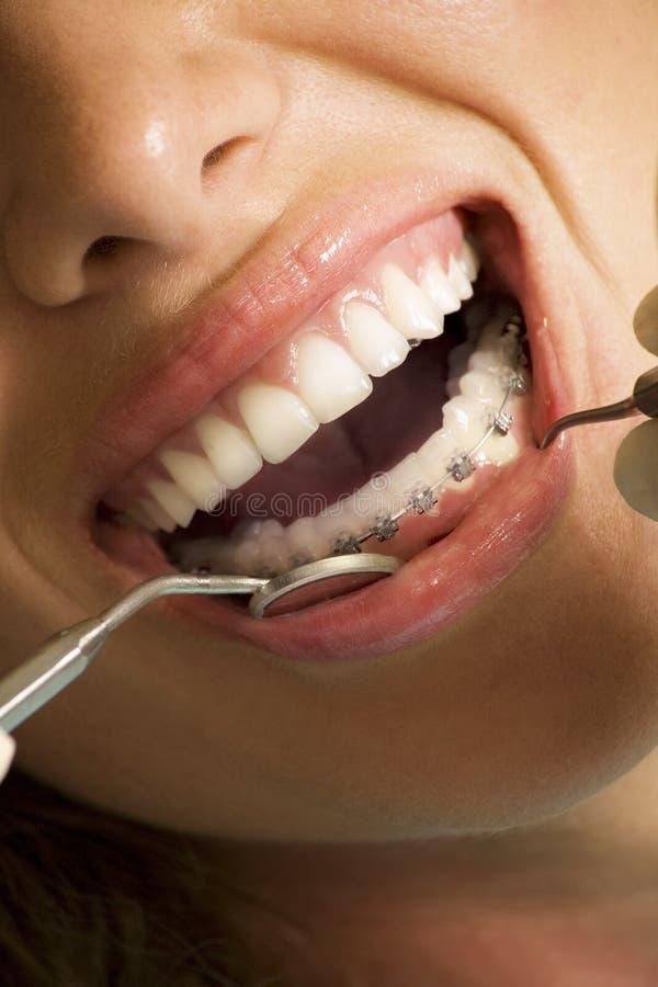 Corrigindo o dispositivo nos dentes foto de stock royalty free