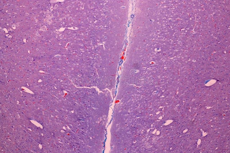Corte transversal del cerebelo y del nervio humanos debajo del microscopio para la educación imagen de archivo libre de regalías
