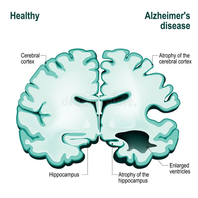 Corte transversal del cerebro humano Cerebro sano comparado a Alzh ilustración del vector