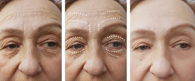 Cosmetólogo mayor de la terapia del retiro de las arrugas de la mujer antes y después de la diferencia de la elevación imagen de archivo
