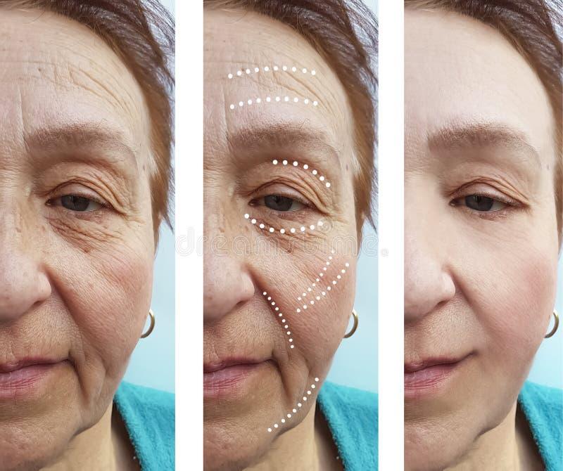 Cosmetólogo mayor del biorevitalization de la terapia del retiro de las arrugas de la mujer antes y después de la diferencia de l fotos de archivo
